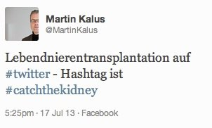 Lebendnierentransplantation Twitter