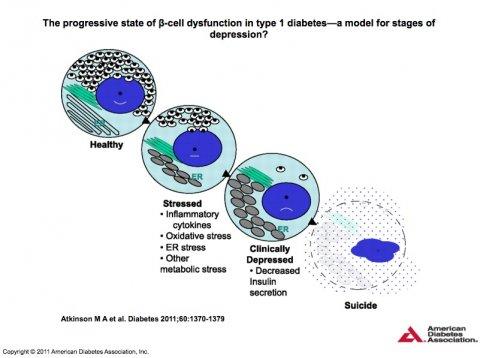 Diabetes mellitus type 1: progressive beta cell dysfunction.