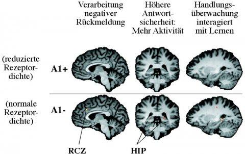 Dopaminrezeptoren und Fehlerverarbeitung