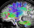 Nervenfasern im Gehirn