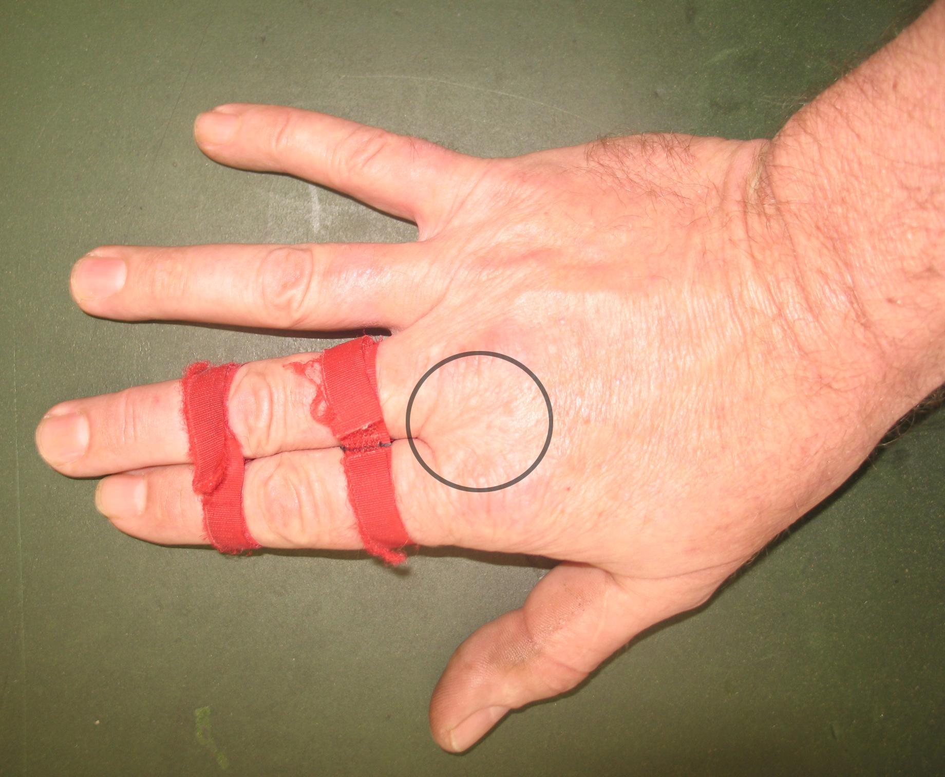 Twiching zwischen Daumen und Zeigefinger