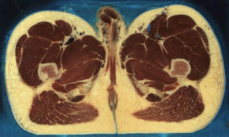 Das Substrat der Schönheit » Anatomisches Allerlei
