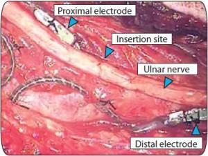 Die Elektroden werden an den Armnerven implantiert. Danach mussten die Forscher erstmal herausfinden, ob die Dinger an den richtigen stellen liegen. Bildquelle: Abb. 1 aus Raspopovich et al., Science Translational Medicine Vol 6 Issue 222 222ra19, 2014.