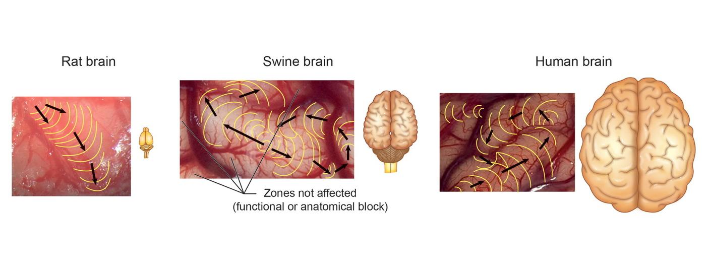 Spreading Depression: Migräne, Schlaganfall und Schädel-Hirn-Trauma