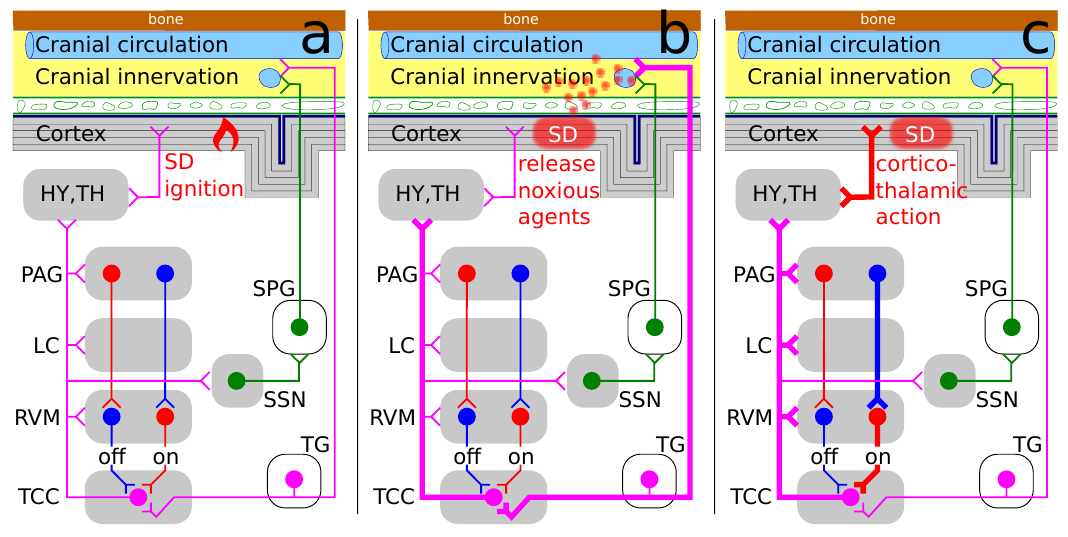 Migräne Generator Netzwerk