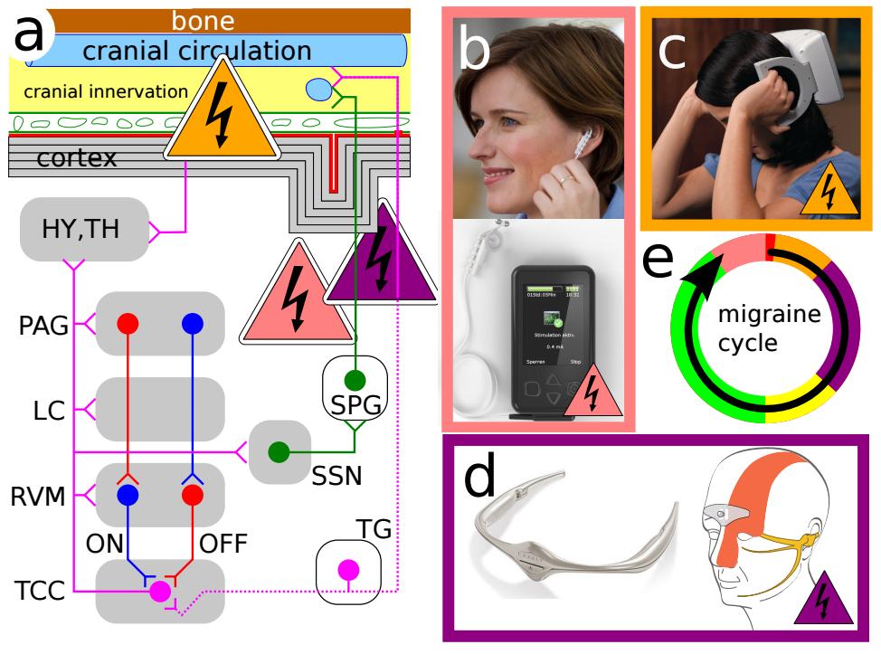 Migräne-Generator-Netzwerk und die Stimulations des Nervensystems.