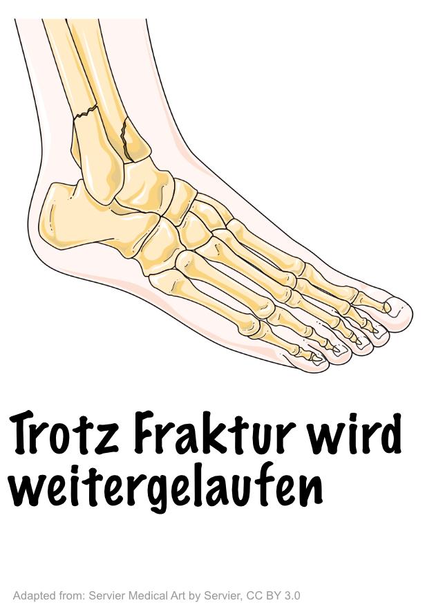Möglich: Trotz Schmerzen, zum Beispiel einer Fraktur im Springelenk wird weitergelaufen