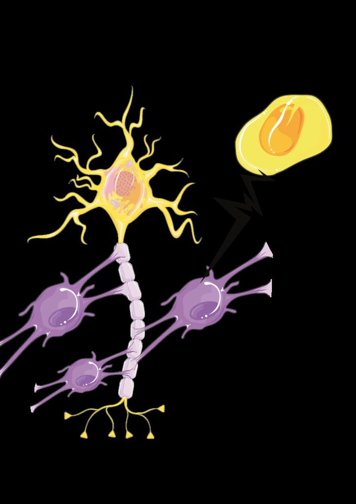Veranschaulichung Pathomechanismus der Multiplen Sklerose (MS)