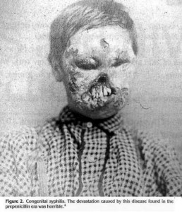 Syphilis vor der Entdeckung des Penicillin (Source: Lindsey Fitzharris)