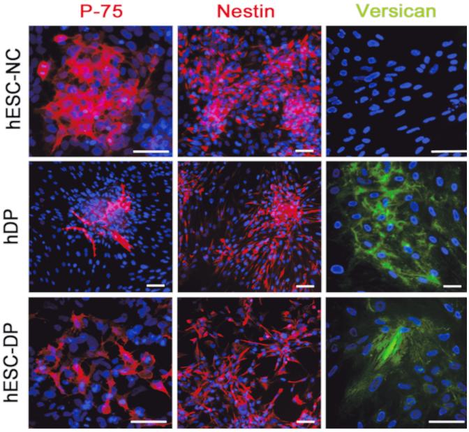 Proteine, die spezifisch für die differenzierten Zellen sind, wurden mit Fluoreszenzfarbstoffen angefärbt. Der Zellkern ist jeweils in blau dargestellt. Die rote und grüne Färbung ist spezifisch für die jeweiligen Proteine. Das Ergebnis ist dann schön bunt. Quelle: DOI: 10.1371/journal.pone.0116892